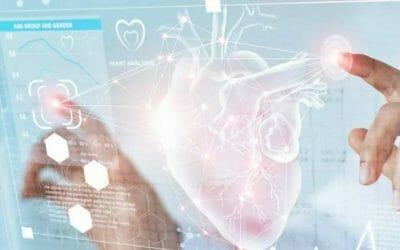 Gepatenteerd Intraoperative Digital Aortography product